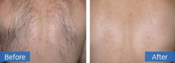 back hair removal coral springs fl