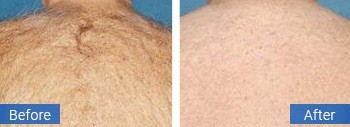 coral springs back hair removal