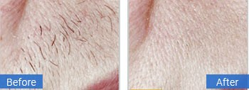 gulf stream facial hair removal