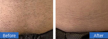 coral springs laser hair removal