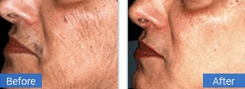facial hair removal in gulf stream florida