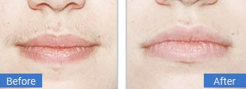 facial laser hair removal gulf stream fl