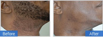 laser facial hair removal in gulf stream fl