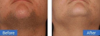 laser hair removal gulf stream facial hair removal