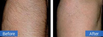 laser hair removal gulf stream fl