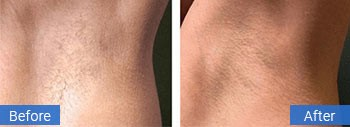 laser hair removal gulf stream florida